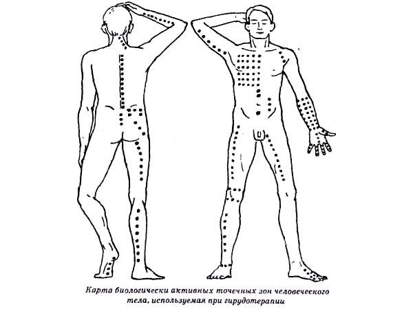 Точки для постановок пиявок на теле человека.