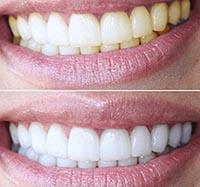 О средствах отбеливания зубов в домашних условиях.