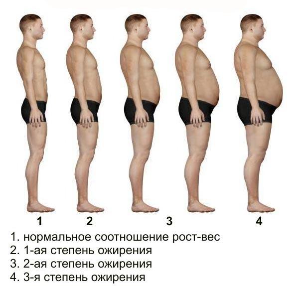 Три степени ожирения