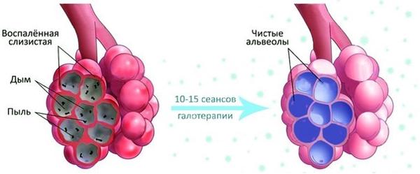 Эффект галотерапии